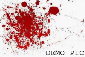 28_01_2014-Blood-splat